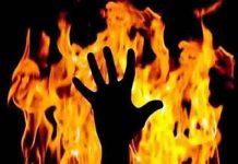 husband burned